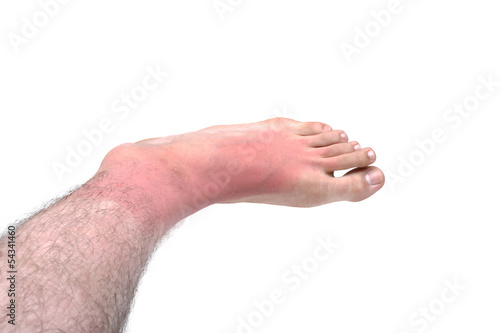 Sunburn feet