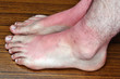 Sunburn on the feet