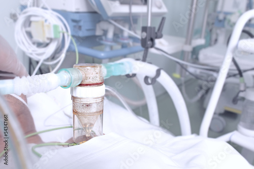 in the ICU
