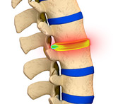 Herniated Disc Degeneration - Spine problem
