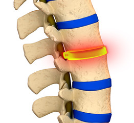 Bulging Disc Degeneration - Spine problem
