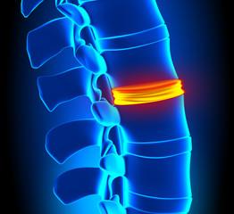 Disc Degeneration - Spine problem