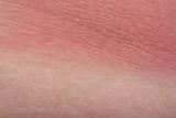 Example sunburn