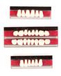 Teeth set isolated on white