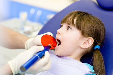little girl with open mouth receiving dental filling