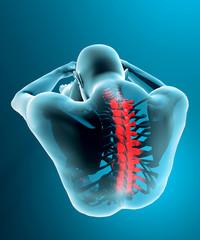 Colonna vertebrale dolore raggi x corpo umano