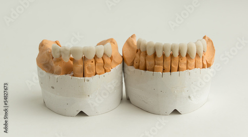 ceramic dental crown