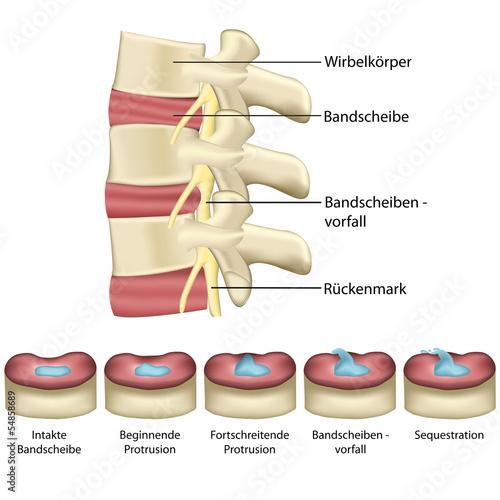 Bandscheibenvorfall - Wirbelsäule - 54858689