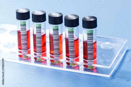vials with red liquid in rack