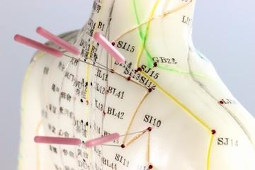 Akupunktur01