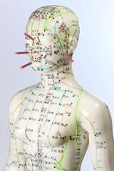 Akupunktur03