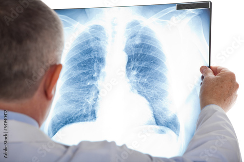Doctor examining a lung radiography - 54940412