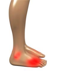 Fußgelenkschmerzen - 3D Render