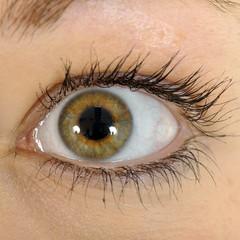 Auge mit Kontaktlinse in Nahaufnahme