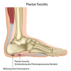 Plantar fasciitis, vector illustration german