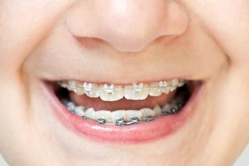 Jeune ado avec un appareil dentaire