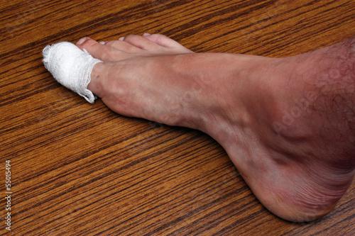 Bandaged toe