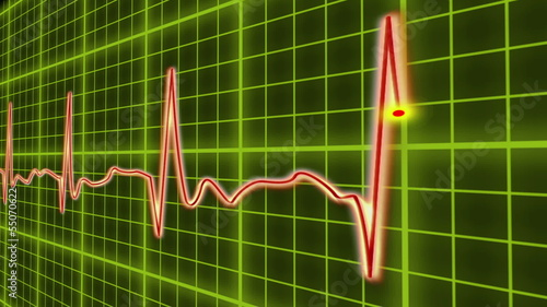 EKG cardio heart beat, normal and zero pulse with audio