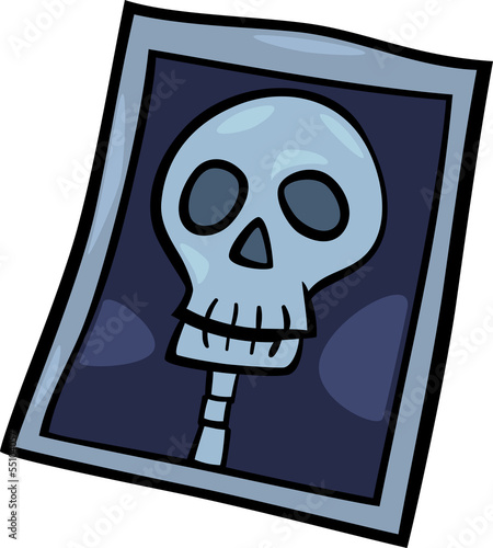x-ray photo clip art cartoon illustration
