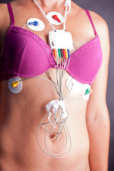 Woman wearing a Holter Heart Monitor
