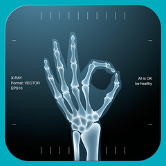 X-ray of both human hand (OK!), vector Eps10 illustration.