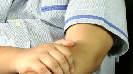 Boy with allergy skin scratch itchy arm