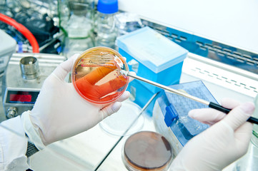 microbiology - bacteria culture