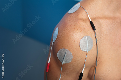 Shoulder Electrical Stimulation / TENS