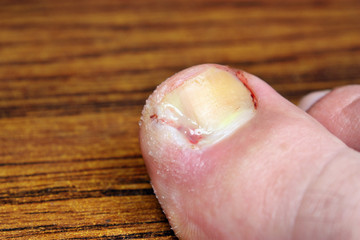 Toe after surgery