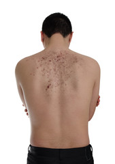 Acne and scars (keloids). Dermatology, skin disease.