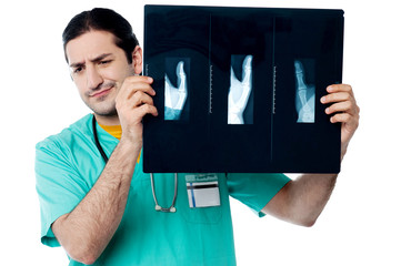 Disappointed surgeon after seeing x-ray report