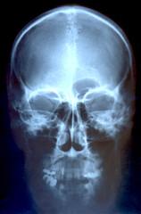 レントゲン 頭部