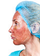 Cosmetology. Skin condition after chemical peeling TCA