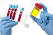 Échantillons de Sang & Urine pour Analyses