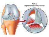 rottura legamento crociato anteriore