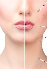 Woman's face before and after injection of acne and lip