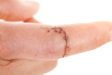 Close-up of sewed wound on caucasian finger
