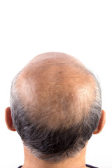 hair loss bald man