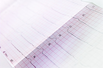 EKG-Bericht