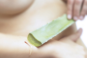 Frau benutzt Aloe Vera Gel