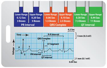 Guide ECG