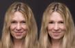 canvas print picture - Gesicht Vorher Nachher