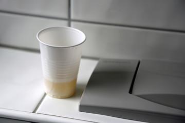 Urinprobe