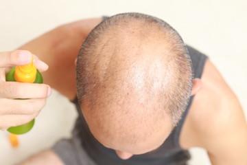 育毛剤を使う薄毛の男性
