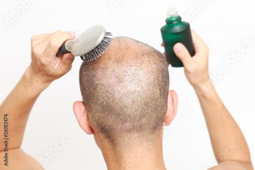 育毛をする男性