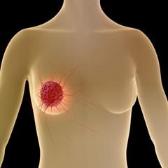 Brustkrebs - 3d Render