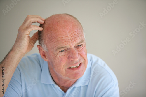 Senior bald man scratching his head