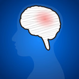Brain injuries