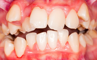 Dental displacement