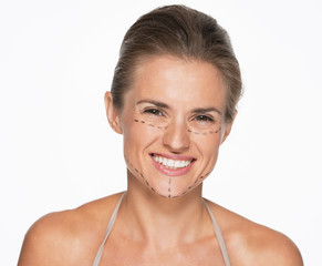 Happy woman with plastic surgery marks on face